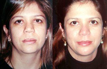 Aumento de dorso y punta nasal + Mentoplastia y liposucción de papada. Resultados a los 2 años.