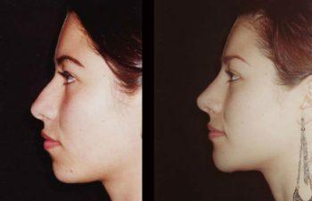 Vista de perfil izquierdo, Nótese la Mentoplastia.
