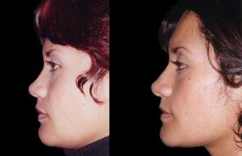 Vista De perfil izquierdo, Resultado a los 2 años.