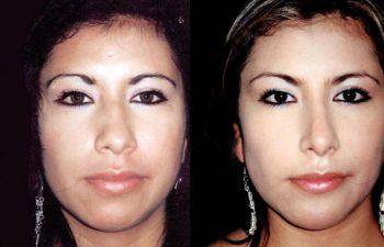 Rinoplastia de aumento y mentoplastia, aumento de dorso óseo y cartilaginoso y punta nasal. Osteotomias y reducción del largo de la nariz, obsérvese líneas dorsales, resultados a los 8 meses.