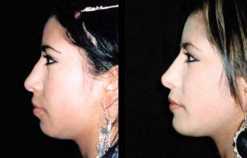 Vista de perfil izquierdo.