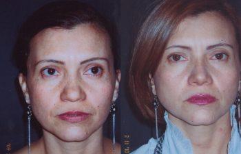 Obsérvese alineamiento del dorso y definición de punta nasal.