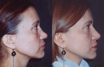 Obsérvese aumento + definicion + proyección de la nariz.