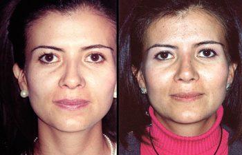 Aumento de radix + aumento en el dorso cartilaginoso + definición en la punta nasal + disminución del largo de la nariz. Resultados a los 12 meses.
