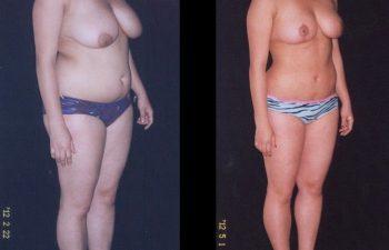 Reducción de Senos + Liposucción de Abdomen-cintura-cadera y espalda.