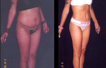 Paciente de 28 años. Se realizó Abdominoplastia + Lipolisis Vaser de Cintura-Cadera y desgrasado del abdomen.