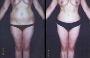 Paciente de 43 años. Se realizó Abdominoplastia + Lipolisis Vaser de Cintura-Cadera y desgrasado del abdomen.