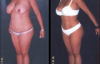 El Bikini cubre la cicatriz abdominal.