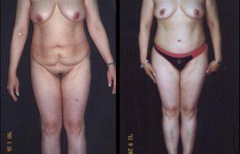 Paciente de 37 años. Se realizó Abdominoplastia + Reducción de Senos.