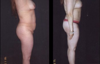 Observe ombligo natural SIN cicatriz y desaparición de su Cesarea vertical.