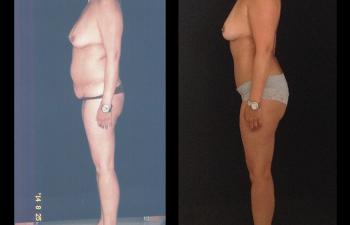 abdominoplastia-liposuccion-lateral-izquierda