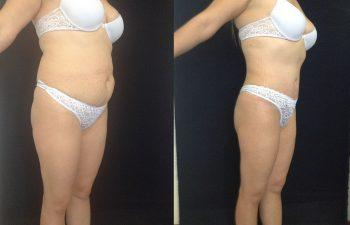 Abdominoplastia + Liposucción de Cintura y cadera + Pexia Mamaria Resultados a los 2 meses