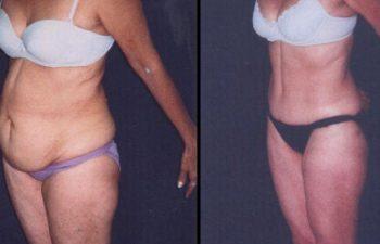 Paciente de 55 años. Se realizó Abdominoplastia + Lipolisis Vaser de Cintura-Cadera y desgrasado del abdomen.