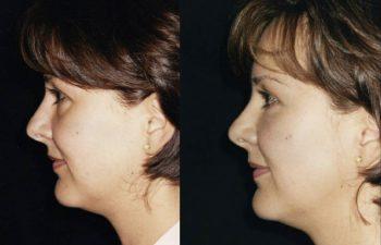 Vista perfil izquierdo.