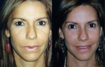 Blefaroplastia superior + Botox. Resultado a los 3 meses
