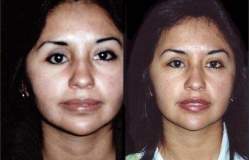 Cantoplexia de ojo derecho + injerto graso en párpado inferior por perdida de globo ocular derecho. Observese ojo derecho menos redondo. Resultado a los 4 meses.