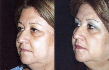 Vista oblicua izquierda. Obsérvese limpieza del ojo izquierdo. Resultado a los 7 meses.