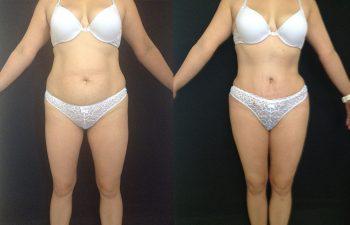 Liposucción de Cintura y cadera + Pexia Mamaria + Abdominoplastia