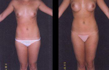 Aumento de senos simple. Implante en posición retroglandular con descenso del surco submamario. Paciente de torso largo y estatura mediana. Senos Copa B