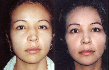 Rinoplastia + Blefaroplastia inferior + Mentoplastia. Resultado a los 12 meses.