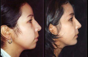 cirugia2
