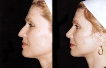 Vista perfil izquierdo. Obsérvese aumento de dorso óseo y proyección de la punta. Resultado a los 5 meses.