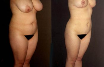Vista oblicua derecha, mama reducida en 600 gramos, obsérvese cicatrización.