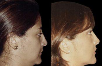 Tratamiento de pseudos Mentón de Bruja con Liposucción. Perfil derecho.