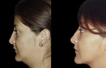 Perfil izquierdo. Nótese delineamiento mandibular.