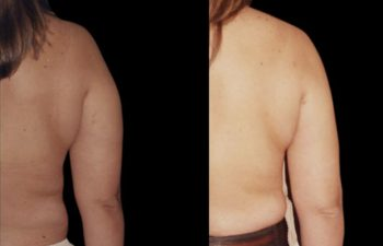Vista dorsal del mismo brazo. Piel intacta.