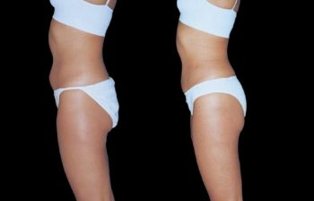 Liposucción de abdomen inferior.