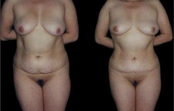 Liposucción de torso completo y abdominoplastia.