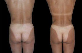 Liposucción de cintura, abdomen superior e inferior.
