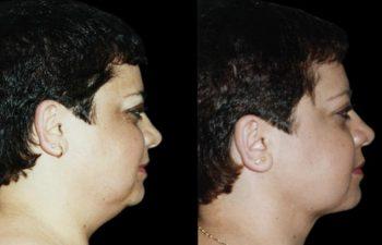 Perfil derecho. Nótese base nasal y labio más despejado.
