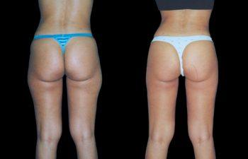 """Liposucción de cintura, cadera, """"conejos"""" glúteas y contorno de piernas. Nótese en la foto de la derecha, piel intacta sin manchas, depresiones, ni irregularidades."""