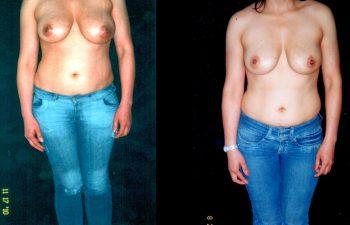 Mamoplastia de Reducción por Asimetria SIN CICATRIZ visible. Técnica Periareolar. Se retiró 200 gr de Seno Izquierdo. Resultado a los 8 meses. Vista de Frente