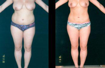Reducción de Senos + Liposucción de abdomen-espalda-cintura-caderas. Resultado a los 3 meses.