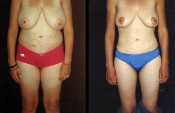 Liposucción de cadera y cintura + Reducción de senos, cicatriz en ancla.