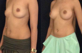 mamoplastia-aumento-diagonal-izquierda