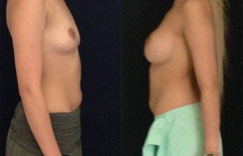 mamoplastia-lateral