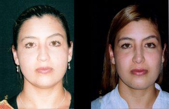 Rinoplastia, Mentoplastia más adelgazamiento de cachetes, Cirugía multiple de cara. Resultados a los 8 meses.