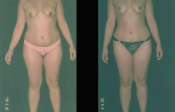 pexia-mamariaabdominoplastia-toma-1