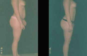 pexia-mamariaabdominoplastia-toma-2