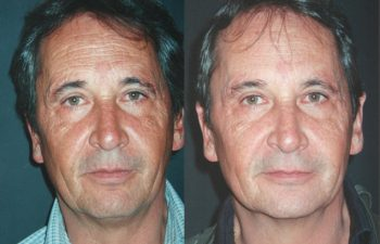 Rejuvenecimiento facial con células madre + Botox + Plasma