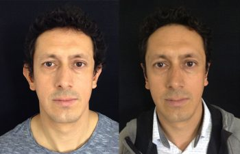 Otoplastia hombre perfil frontal