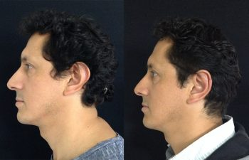Otoplastia hombre perfil izquierdo