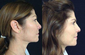 Blefaroplastia mujer perfil derecho