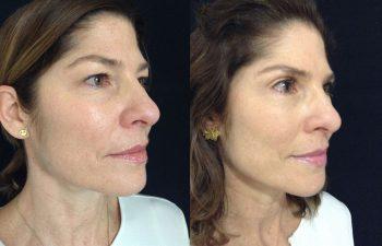 Blefaroplastia mujer perfil diagonal derecho