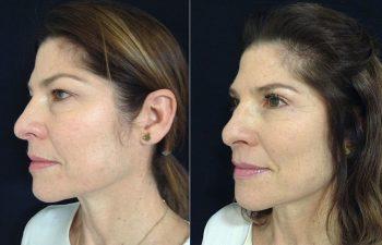 Blefaroplastia mujer perfil diagonal izquierdo