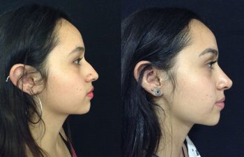 Rinoplastia mujer perfil derecho